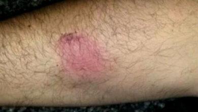 Foto de INTOLERÂNCIA: Jovem não aceita que família vote em Bolsonaro e ataca irmão
