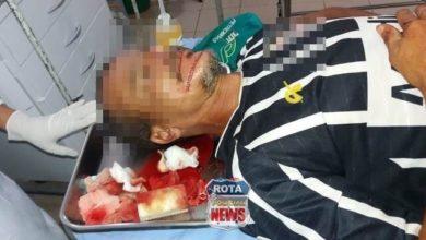 Photo of Homem sofre tentativa de homicídio à facadas na área rural de Vilhena