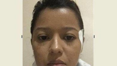 """Foto de Enfrentando doença rara, cabeleireira vilhenense cria """"Vakinha"""" para tentar fazer cirurgia de R$ 50 mil"""