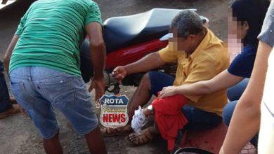 Photo of Pedreiro tem dedo decepado em acidente no Centro