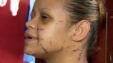 Photo of Mulher é atacada com golpes de faca por dono da casa após barulho