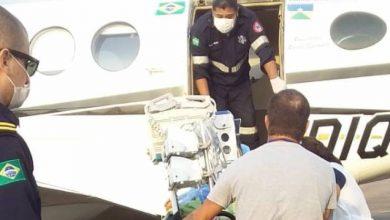 Foto de Menina vilhenense de 06 anos tem corpo atingido por fogo durante churrasco e é transferida de avião para Porto Velho