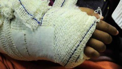 Foto de Criança tem braço quebrado pela mãe por limpar mesa ao invés de geladeira
